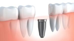 impianti dentali 199 €