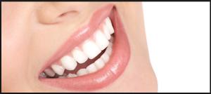 apparecchi ortodontici invisibili Invisalign